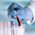 test prenatal no invasivo